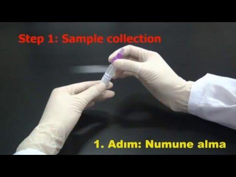 Gaitada Gizli Kan Testi Çalışma Prensibi