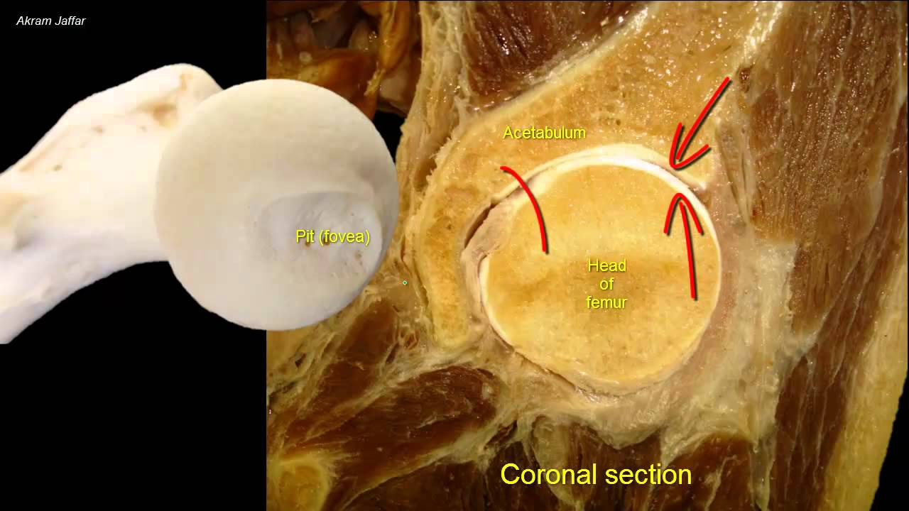 Femoral neck fracture - applied anatomy - YouTube
