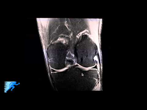 How to Read Knee MRI of Normal Knee | Anatomy of the Knee | Colorado Knee Specialist thumbnail