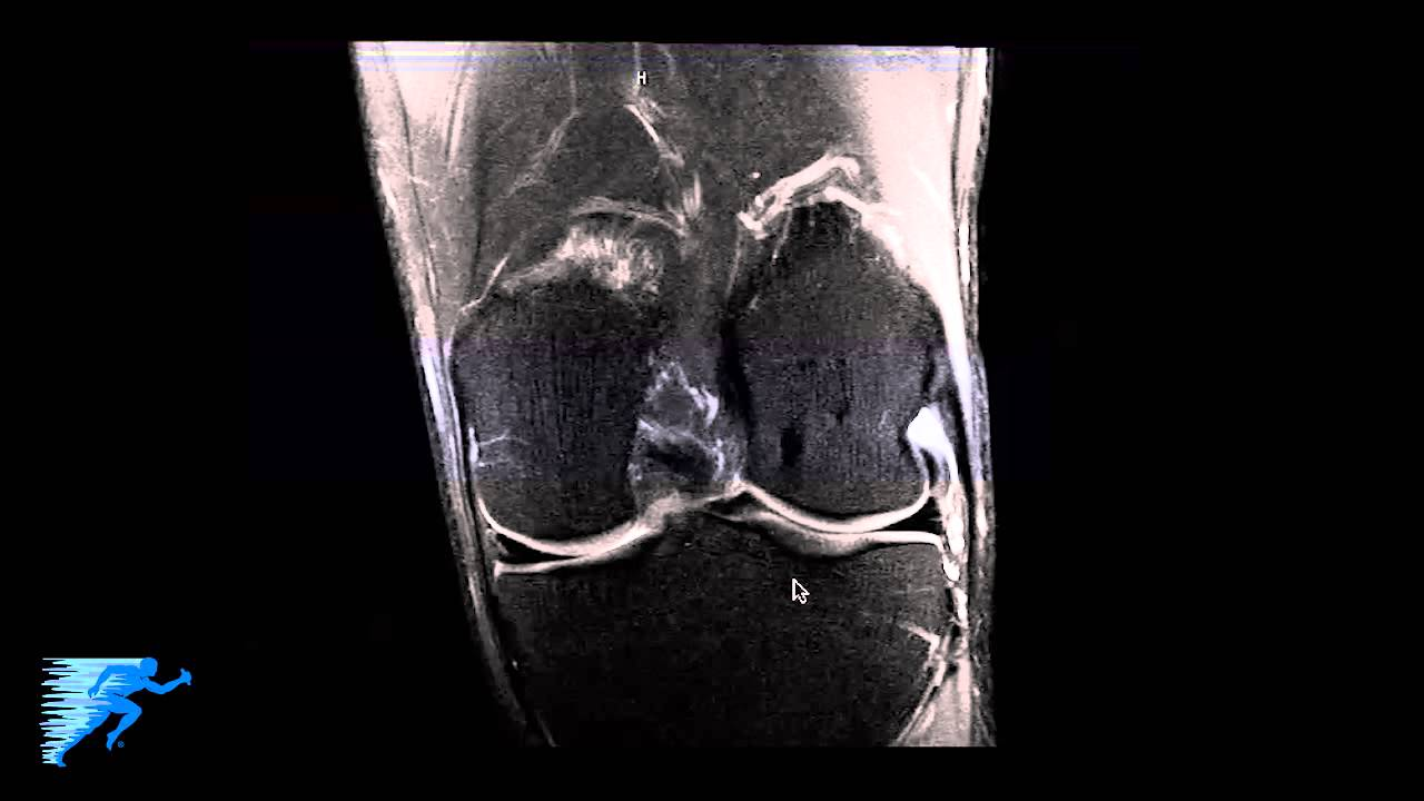 How to Read Knee MRI of Normal Knee | Anatomy of the Knee | Colorado ...