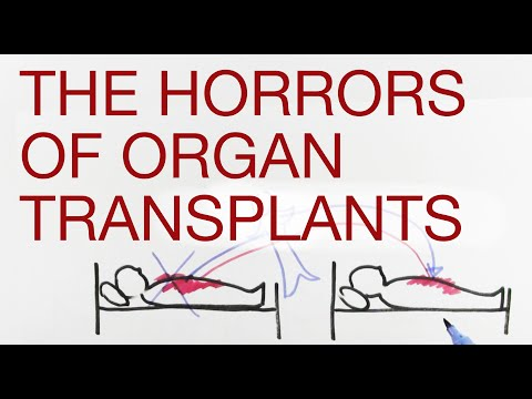 THE HORRORS OF ORGAN TRANSPLANTS explained by Hans Wilhelm (4 min)