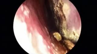 アレルギー性鼻炎、花粉症などによるくしゃみ、鼻水、鼻づまり thumbnail