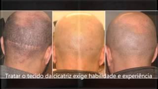 Cobertura De Cicatriz De Transplante Capilar Com A Micropigmentação Capilar