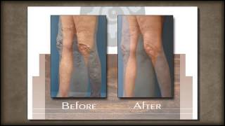 Sclerotherapy | Albuquerque, NM -- Vein Center of New Mexico