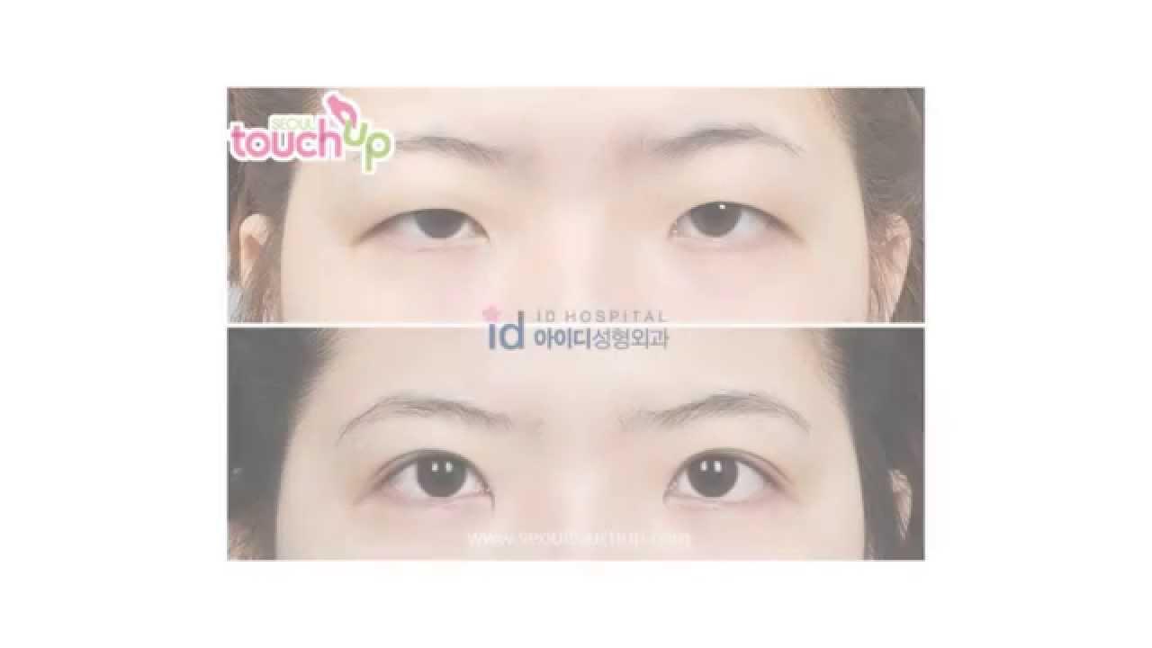 Ptosis Correction Surgery in Korea   Seoul TouchUp