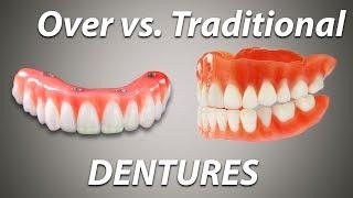 Over Denture vs Traditional Denture