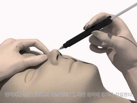 เสริมจมูกสไตล์เกาหลี แบบไม่ผ่าตัด