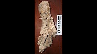 The Elongated Skulls Of Paracas Peru And Their DNA: Update June 2019