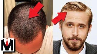 FINE HAIR vs THIN HAIR | Same or Different? Men