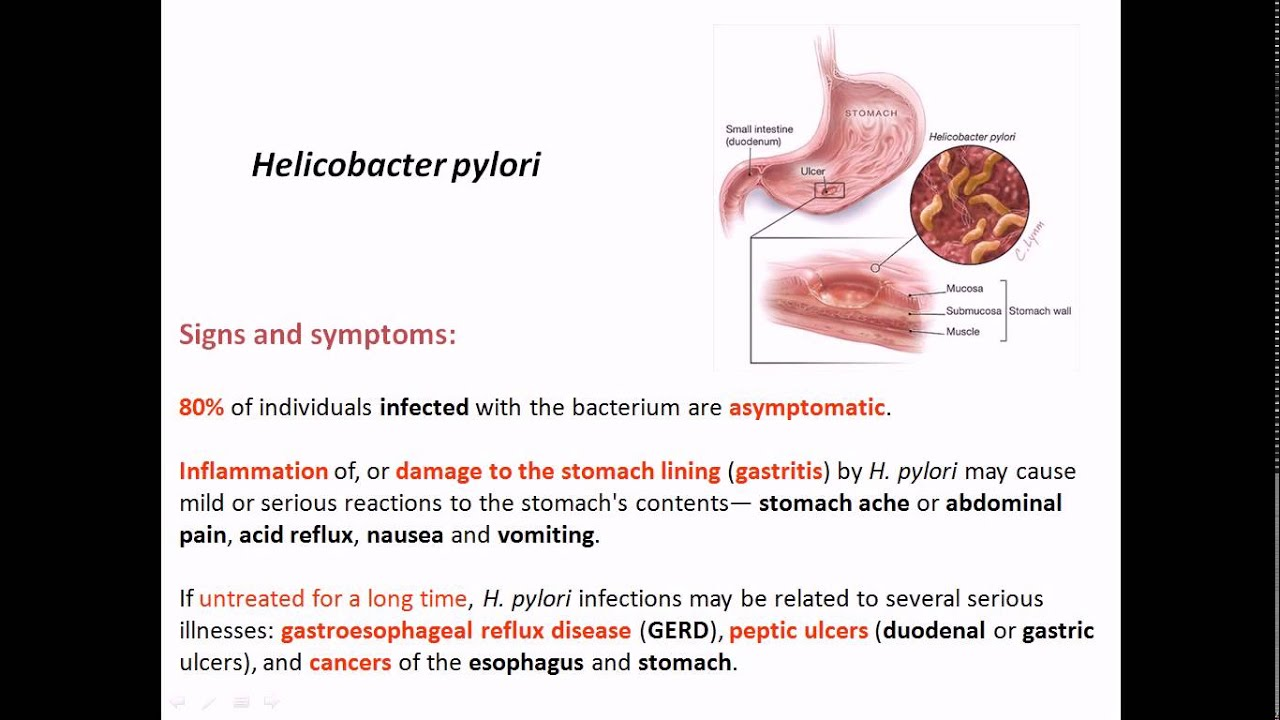 the helicobacter pyloris way of life essay Breath tests are the most accurate way of detecting hpylori without actually having an endoscopy (stomach examination) breath tests are especially useful after treatment to make sure hpylori is cured.