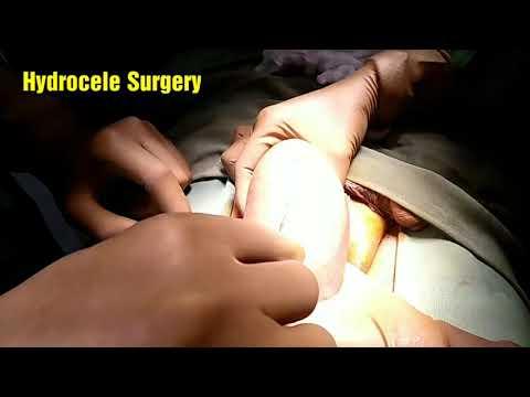 Hydrocele के बारे में सब कुछ - Live Surgery