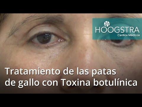 Tratamiento de las patas de gallo con Toxina botulínica (16168)