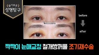 짝짝이 눈매교정 절개쌍꺼풀 조기재수술