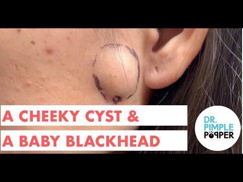 A Cheeky Cyst & A Baby Blackhead