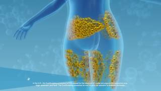 What is the CoolSculpting Procedure | Freeze the Fat - No Surgery - No Downtime