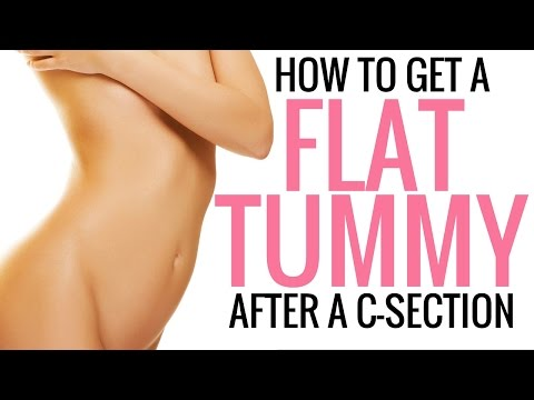how-to-tighten,-tone-and-flatten-your-stomach-after-a-c-section---christina-carlyle