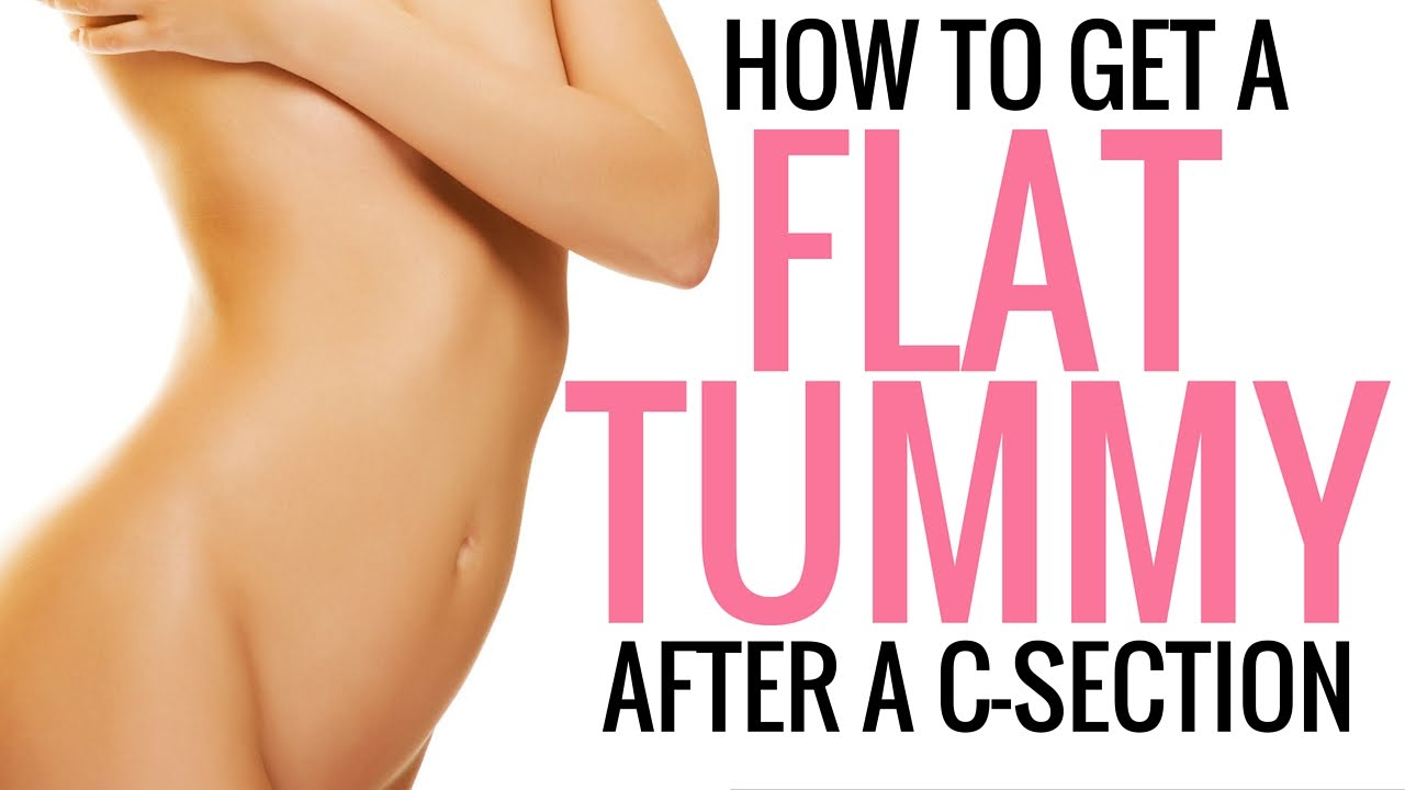 How To Tighten Tone And Flatten Your Stomach After A C