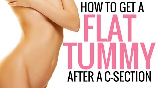 How to Tighten, Tone and Flatten your Stomach After a C-Section - Christina Carlyle thumbnail