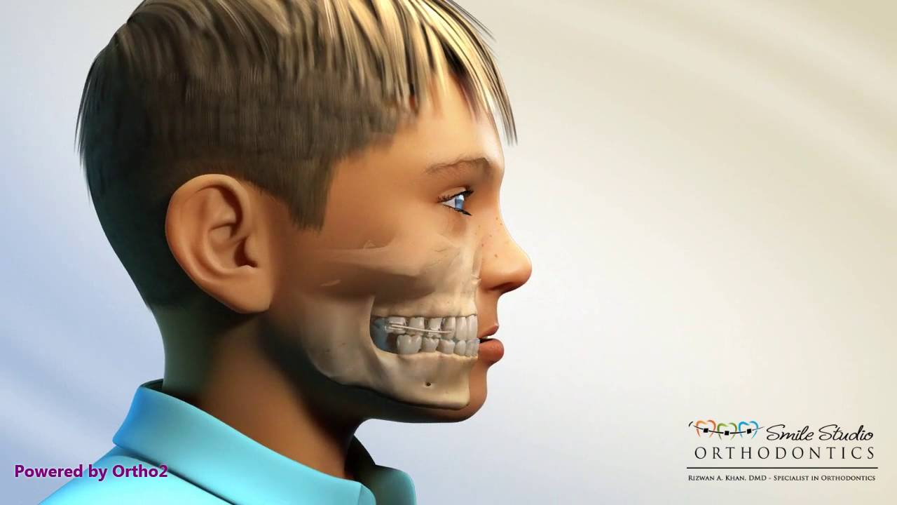 FACE MASK ORTHODONTICS DOWNLOAD
