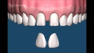 Отбеливание зубов при помощи виниров  Стоматология(В этом видео по стоматологии мы вам расскажем Это очень важно как поциентам, так и врачам стоматологам в..., 2016-04-30T13:49:28.000Z)