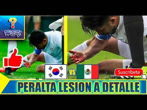 Corea vs Mexico 1-0 Rio 2016; La lesion de Oribe Peralta a detalle