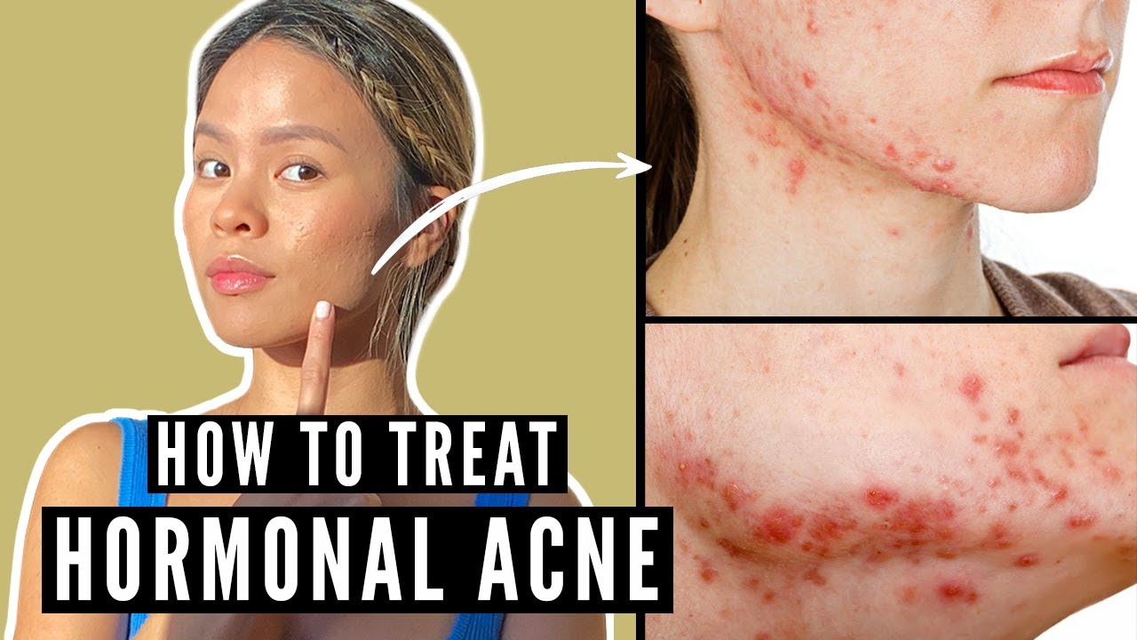 How to Get Rid of Hormonal Acne: Signs and Tips