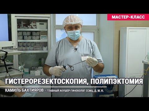 Как проводится операция по удалению полипа в матке