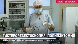 Гистерорезектоскопия, полипэктомия