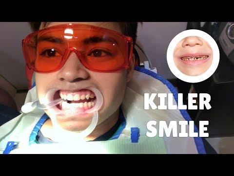 Teeth Restoration and Whitening - Nakakangilo!!!!!