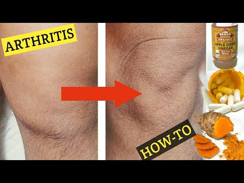 top-3-home-remedies-for-arthritis!-apple-cider-vinegar-acv,-boron,-turmeric-for-arthritis!