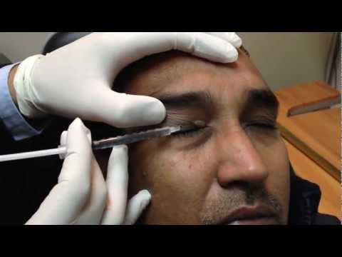 Hemifacial Spasm and treatment with Botox injection