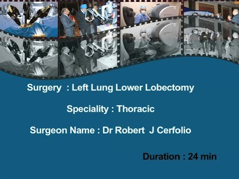 Dr. Robert J. Cerfolio:  Left Lung Lower Lobectomy