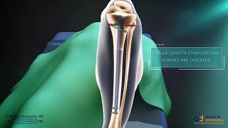 Precice Tibia Lengthening Surgical Animation