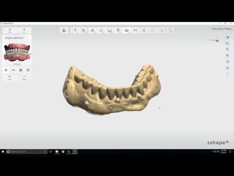3Shape Implant Studio Edentulous Tutorial