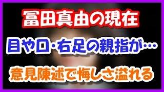 冨田真由の今現在がやばい! 目や口・右足の親指が・・・
