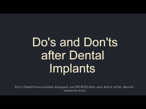 Do's and Don'ts after Dental Implants