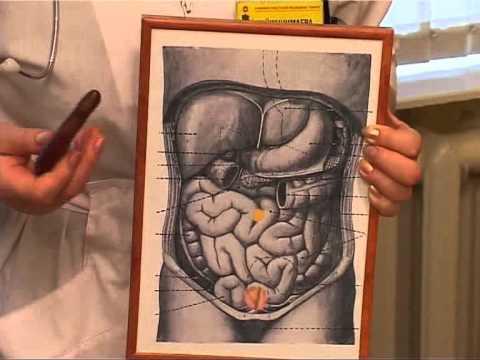 Гастроптоз – опущение желудка, симптомы и лечение