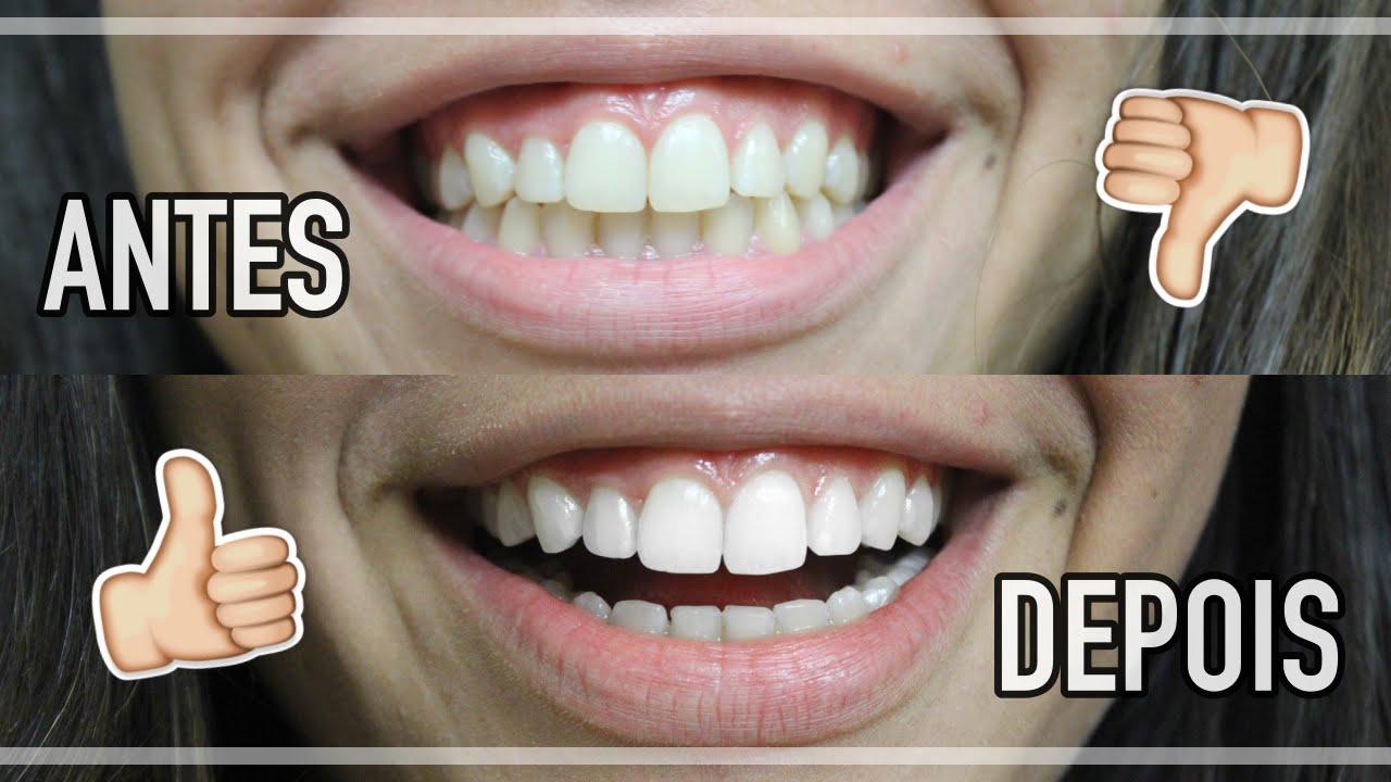 Como Clarear O Dente Em Casa Youtube
