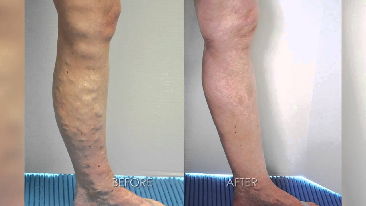 treatment of varicose veins with houston surgeon dr. peter morgan