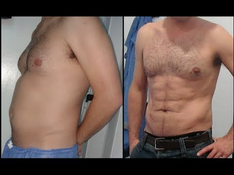 Male Liposuction Hd