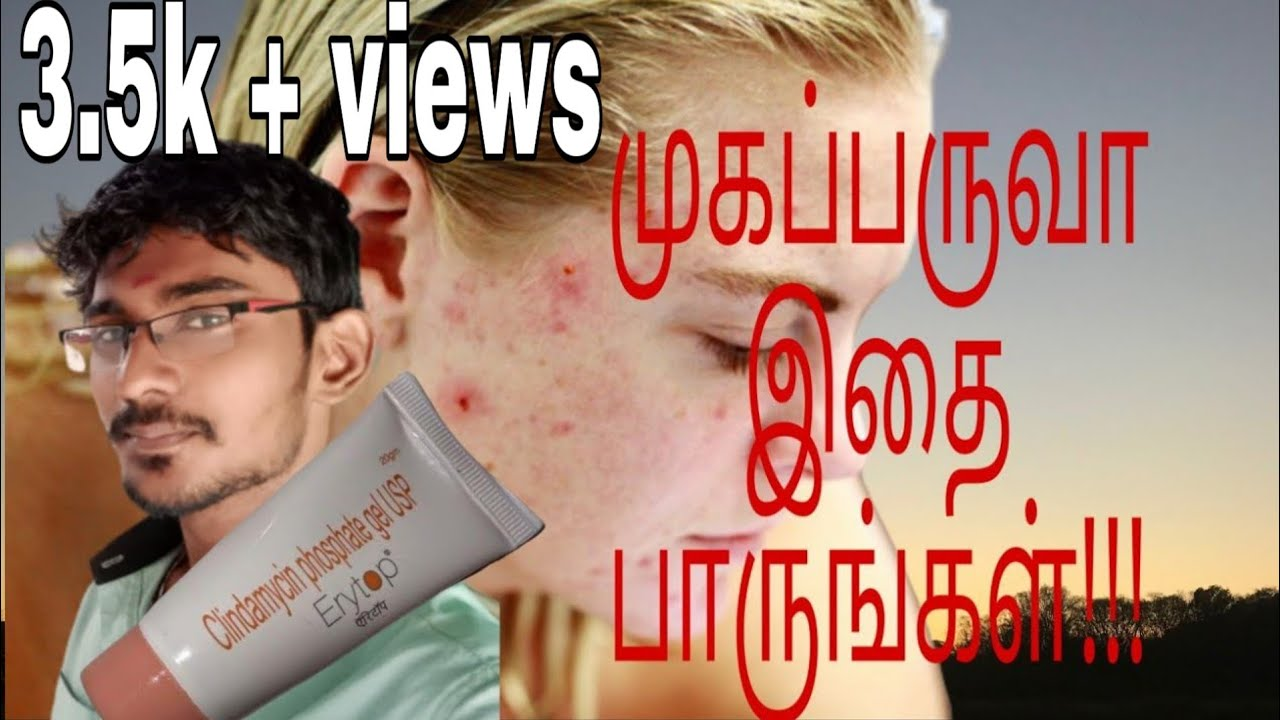Erytop Cream Review In Tamil Treatment For Acne Antibiotics