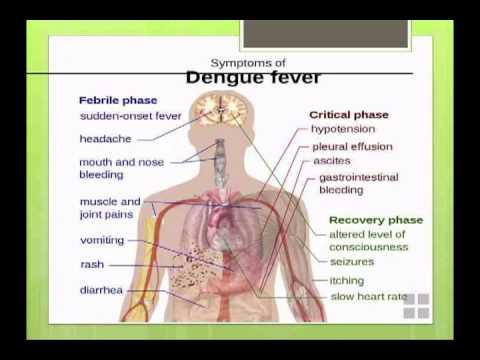 Dengue Fever -- Nancy Rihana, MD