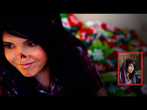 CNN looks at transformation of Aesha, mutilated woman