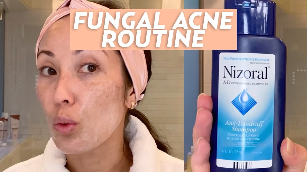 Treat Fungal Acne With This Skincare Routine Skincare Youtube