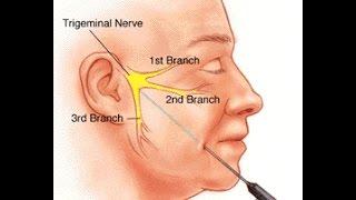 Nyeri Wajah Pada Saraf Occipital Neuralgia Sembuh Dengan Radiofrequency.