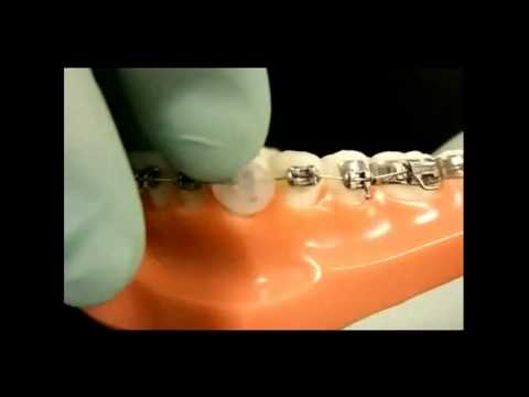 How to fix your braces at home dr roger s lim orthodontist sherman how to fix your braces at home dr roger s lim orthodontist sherman oaks ca youtube solutioingenieria Choice Image