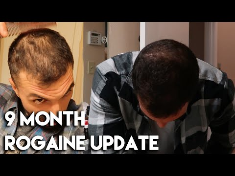 9-month-rogaine-update-(minoxidil)---slowly-coming-back