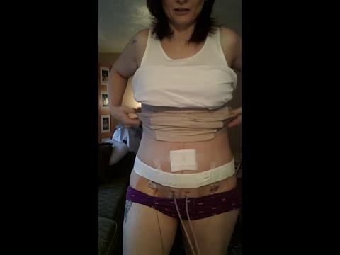 Tummy tuck journey- day 4 post-op bruising. Binder
