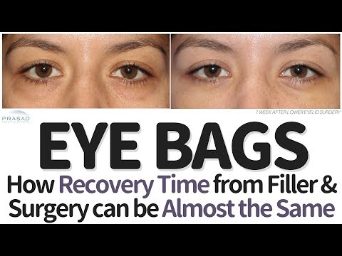 How Recovery for Under Eye Filler and Eye Bag Surgery can be Almost the Same