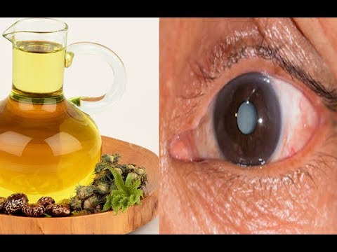 How to Remove a Cataract and Get 20/20 Vision with Castor Oil
